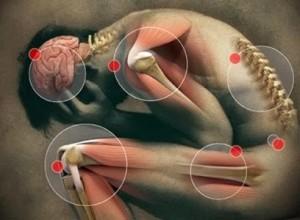 sakit sendi, lutut dan tulang, set kesihatan sendi shaklee