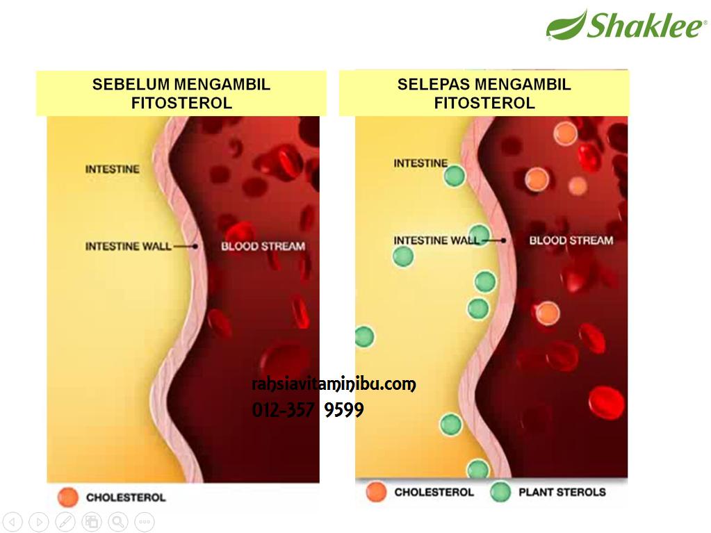 bagaimana fitosterol menghalang kemasukan kolesterol jahat dalam badan